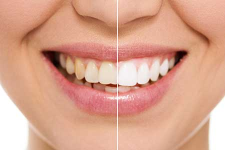 Teeth Whitening in Upper Manhattan